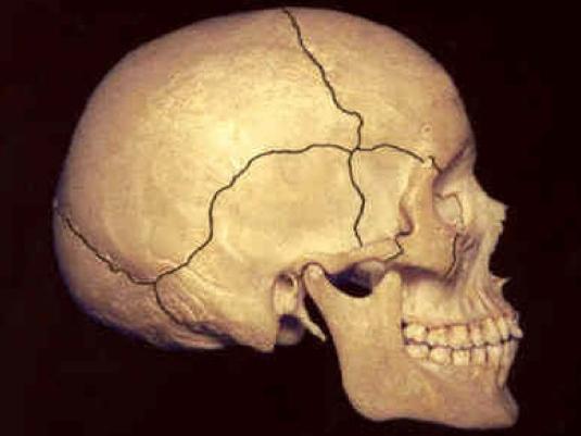 human skull 2a