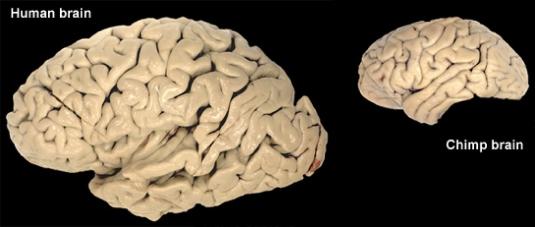 brain comparison 1