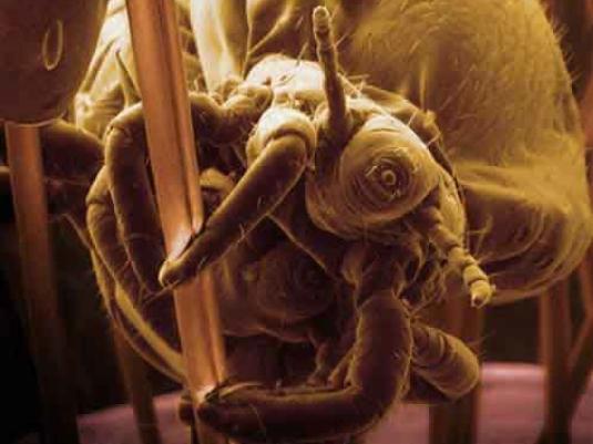 common head lice 1a