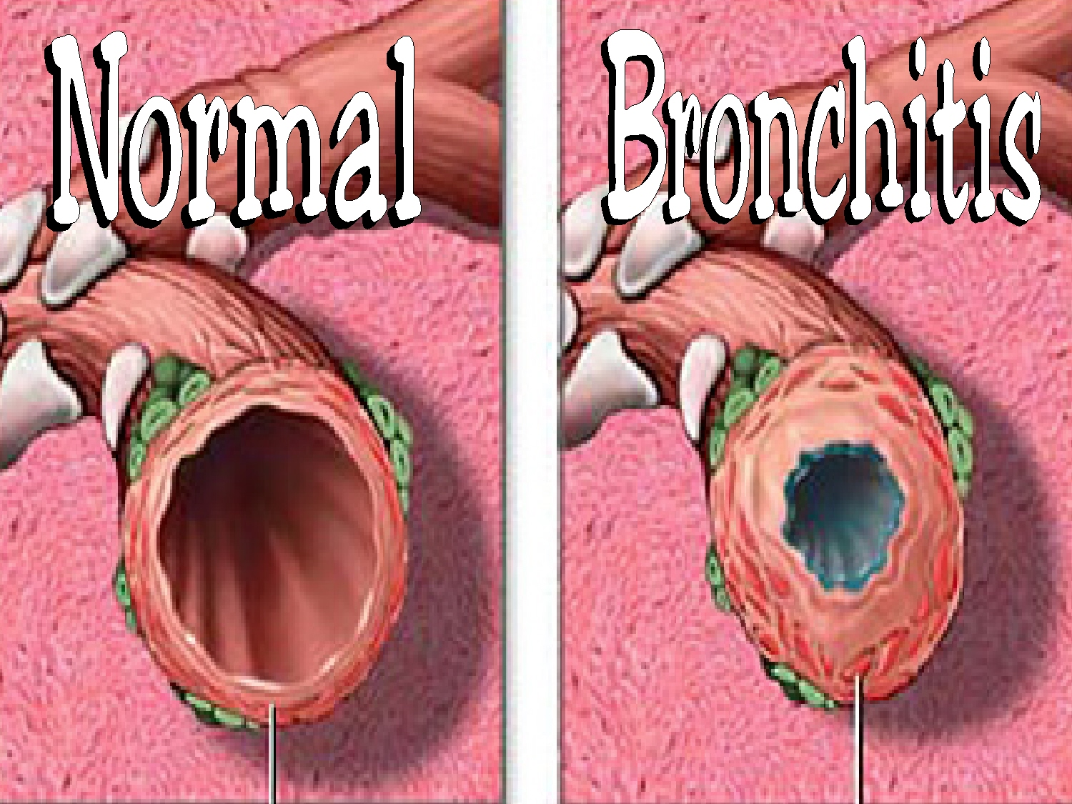 At issue – Bronchitis..
