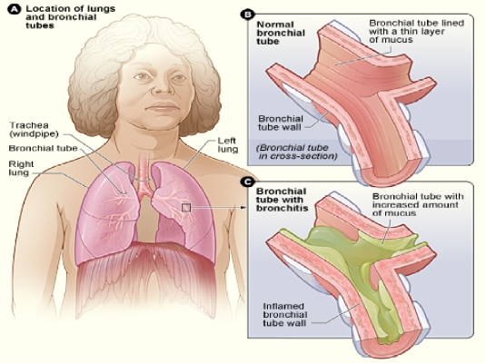 Bronchitis - Grpahic 4