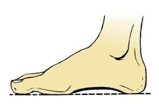 human foot 1